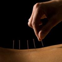 针灸1次(颈椎、腰椎)+推拿
